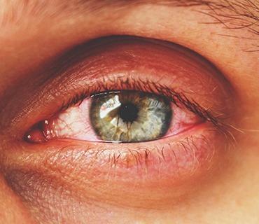 sadighi ophtalmologue service GLAUCOME