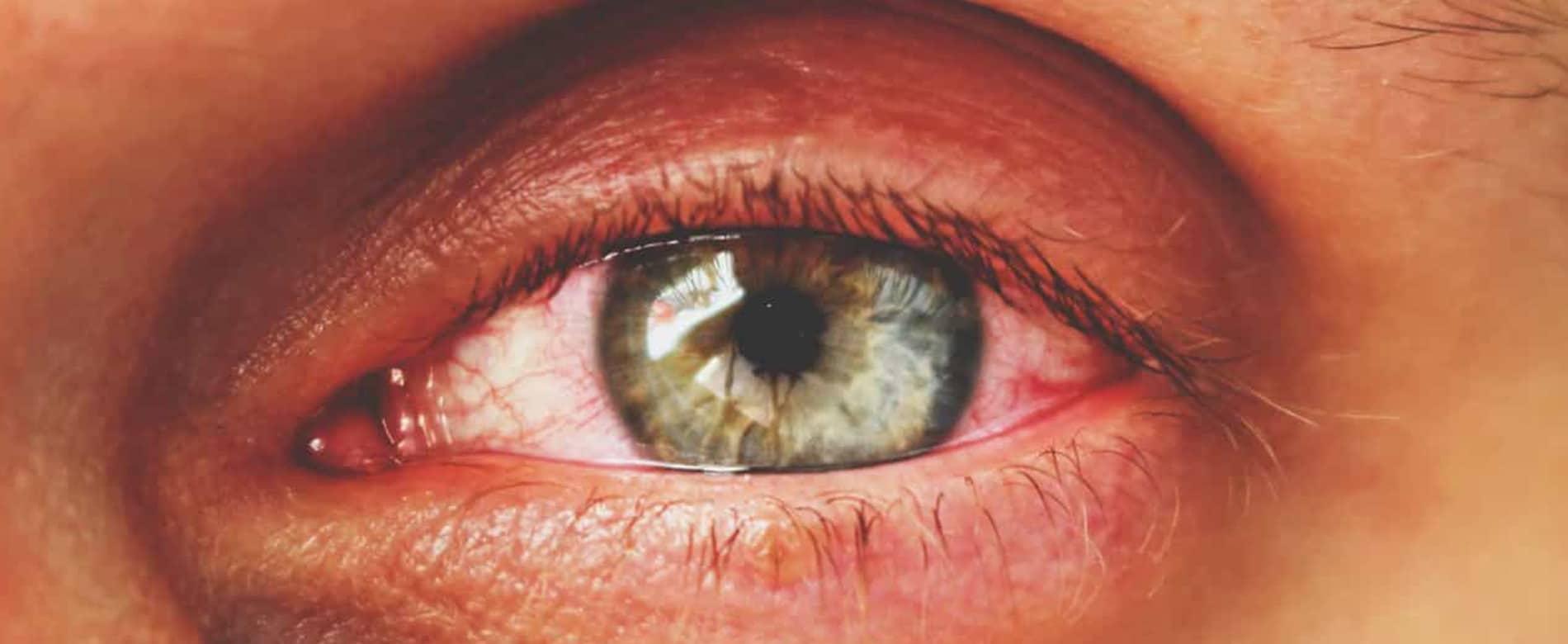 Sadighi ophtalmologue Glaucome